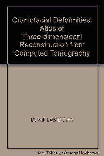 Craniofacial Deformities: Atlas of Three-dimensioanl Reconstruction from Computed Tomography