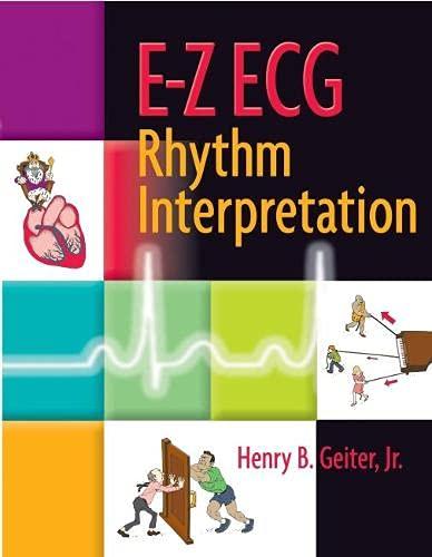 E-Z ECG Rhythm Interpretation
