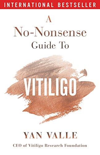 A No-Nonsense Guide To Vitiligo (English Edition)