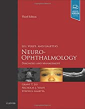 neuro ophthalmology diagnosis and management