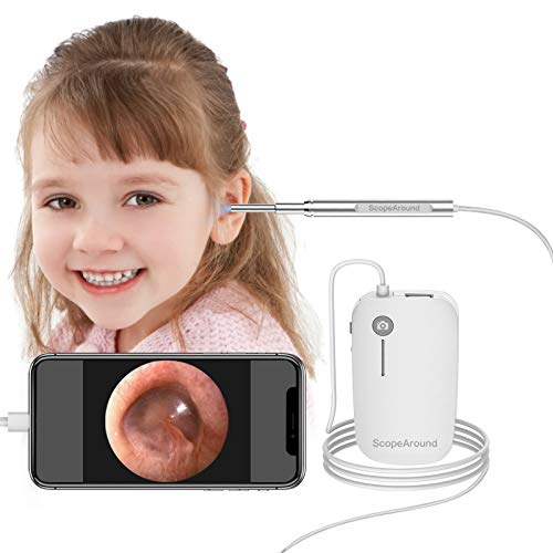 ScopeAround Ear Wax Removal Camera for iPhone Android Phone iPad Tablet, 1280x720 HD Smart Visual Ear Cleaner with Camera Tool Kit, at Home Ear Infection Detector Ear Wax Remover Otoscope with Light