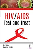 HIV/AIDS: Test and Treat