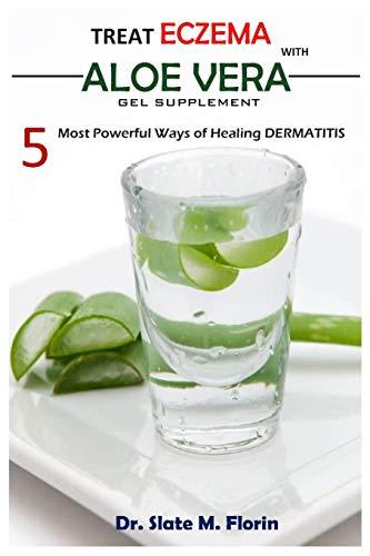 Treat Eczema With Aloe Vera Gel Supplement: 5 most powerful ways of Healing Dermatitis