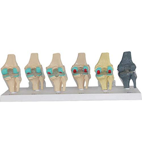 LIBAI Modelo anatomico de la articulacion de la Rodilla Humana - Modelo anatomico de la articulacion de la Rodilla en 6 etapas - Modelo de Lesion de Rodilla para Estudio cientifico,Ayuda capacitacion