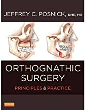 [(Orthognathic Surgery: Principles and Practice)] [Author: Jeffrey C. Posnick] published on (October, 2013)