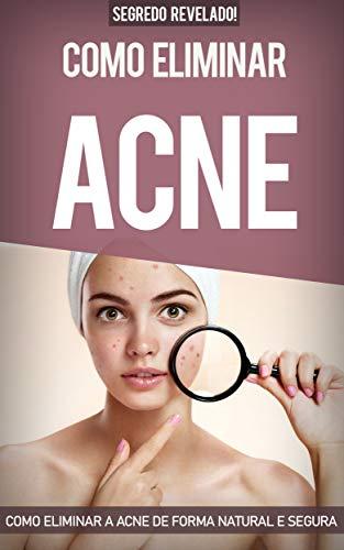 Acne: Como Eliminar a Acne de forma natural e segura sem precisar de tratamentos caros, eliminando todas as espinhas e conseguindo uma pele saudável. Cure ... em 31 dias ou menos. (Portuguese Edition)