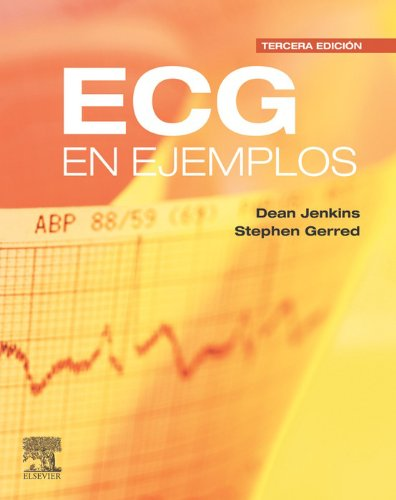 ECG en ejemplos (Spanish Edition)