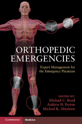 Orthopedic Emergencies: Expert Management for the Emergency Physician (The New Cambridge Shakespeare) (English Edition)