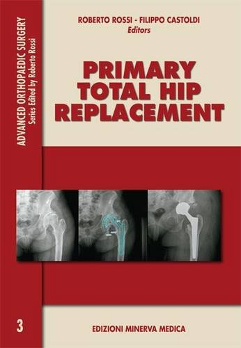 Primary total hip replacement (Advanced orthopaedic surgey)