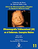 Ultrasonografia Tridimensional en el Embarazo (3D). Conceptos Básicos: 11 (Coleccion de Libros Dr. Manuel Gallo y cols)
