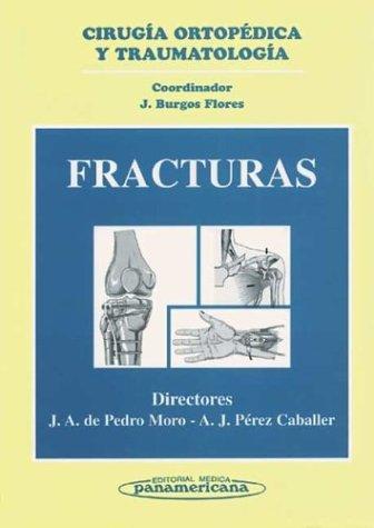 Fracturas. Cirugía Ortopédica y Traumatología