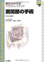 肩関節の手術[DVD付] (整形外科手術イラストレイテッド)