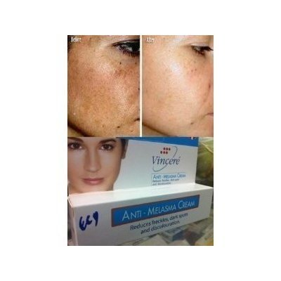 Best Cream Anti-Melasma Reduces Age Spots, Sun Spots, Pigmentation, Freckles 15 G. x 2 Tubes