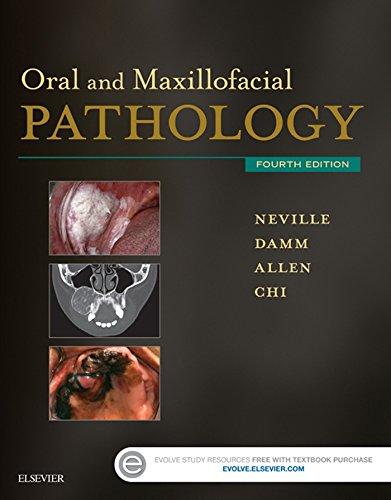 Oral and Maxillofacial Pathology - E-Book (English Edition)