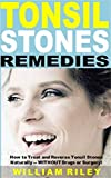 Tonsil Stones Remedies: How to Treat and Reverse Tonsil Stones Naturally -- WITHOUT Drugs or Surgery!