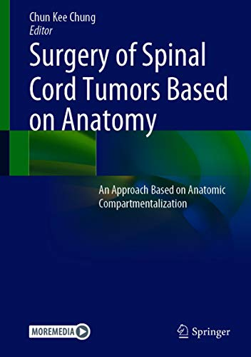 Surgery of Spinal Cord Tumors Based on Anatomy: An Approach Based on Anatomic Compartmentalization (English Edition)