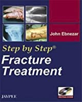 Fracture Treatment (Step by Step)