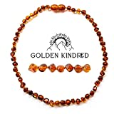 Best Amber Teething Necklaces - Amber Necklace – Polished Baltic Amber Cognac Unisex Review