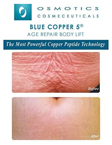 Blue Copper 5 Stretch Marks