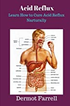 Acid Reflux: Learn How to Cure Acid Reflux Naturally (Natural Health Solutions) (Volume 6)