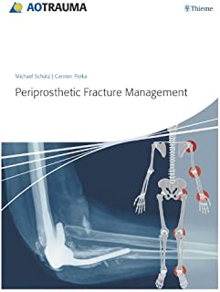 Best periprosthetic fracture management Reviews