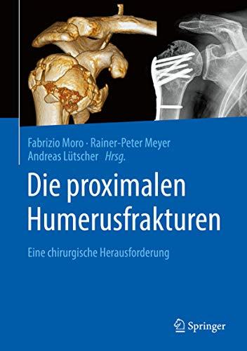 Die proximalen Humerusfrakturen: Eine chirurgische Herausforderung