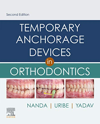 Temporary Anchorage Devices in Orthodontics E-Book (English Edition)