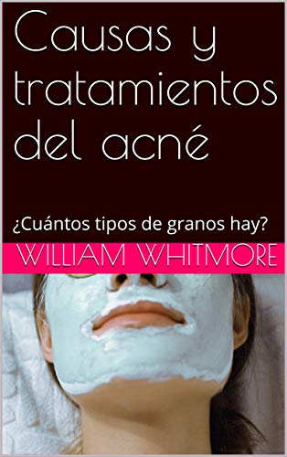 Causas tratamientos acné: ¿Cuántos tipos granos