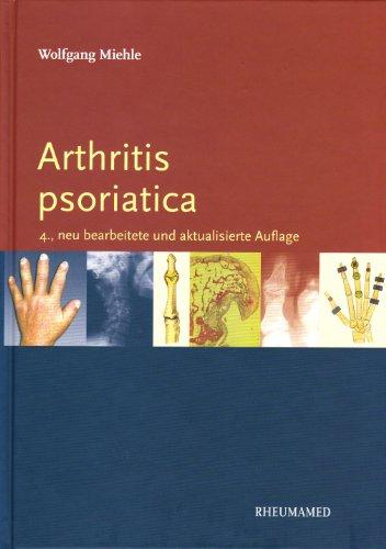 Arthritis psoriatica