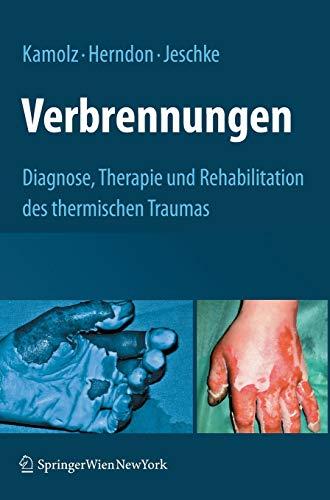 Verbrennungen: Diagnose, Therapie und Rehabilitation des thermischen Traumas
