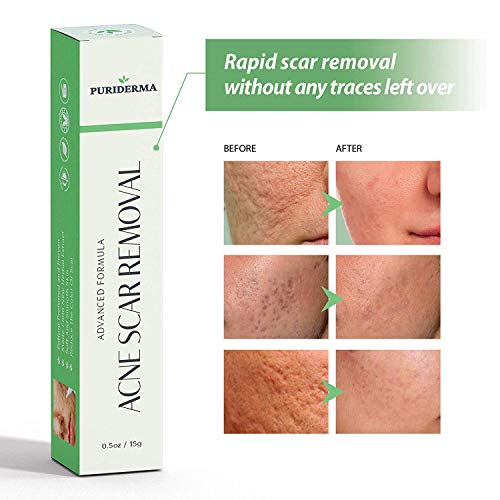 Acne Scar Removal Cream Treatment for Face, Remove & Lighten Old & New Scars, Spots & Marks, Natural, Gentle & Effective Herbal Extracts Formula - by PuriDerma (0.5oz/15g)