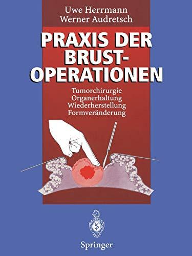 Praxis der Brustoperationen: Tumorchirurgie - Organerhaltung - Wiederherstellung - Formveränderung (German Edition)