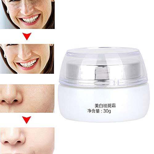 Crema blanqueadora, crema hidratante y reparadora, disminución de manchas faciales y marcas de acné, blanqueamiento e incluso tono de piel, mejorando la elasticidad de la piel