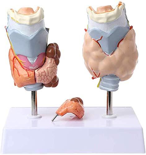 LBYLYH Anatómica Humana Patología Tiroidea Bocio Médico Modelo Modelo Modelo-Conservación-Educación Y La Comunicación