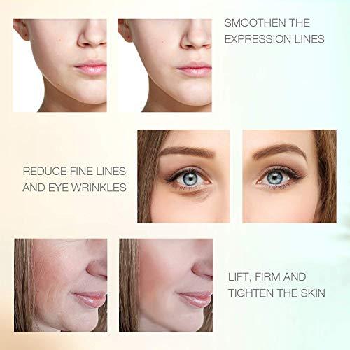 MLAY RF Skin Tightener