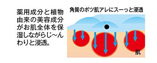 シェモア薬用ツブ・ナイトKゲル【医薬部外品】100g