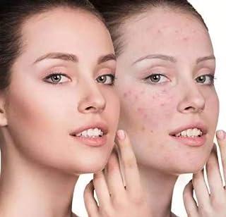 YAFU (TAIWAN) Speacial Acne Cream, Acne Scar Cream, Herbal formula non-irritating,Acne Treatment Serum, Spots Acne Treatme...