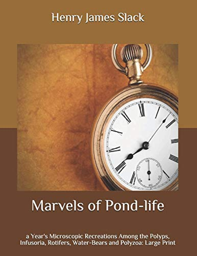 Marvels of Pond-life: a Year's Microscopic Recreations Among the Polyps, Infusoria, Rotifers, Water-Bears and Polyzoa: Large Print