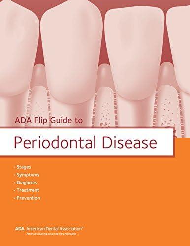 ADA Flip Guide to Periodontal Disease ADA Flip Guides product image