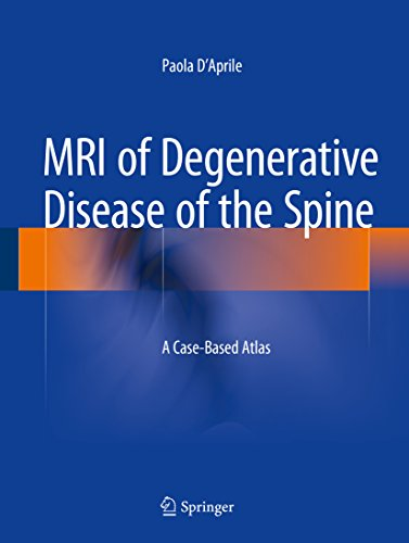 MRI of Degenerative Disease of the Spine: A Case-Based Atlas (English Edition)