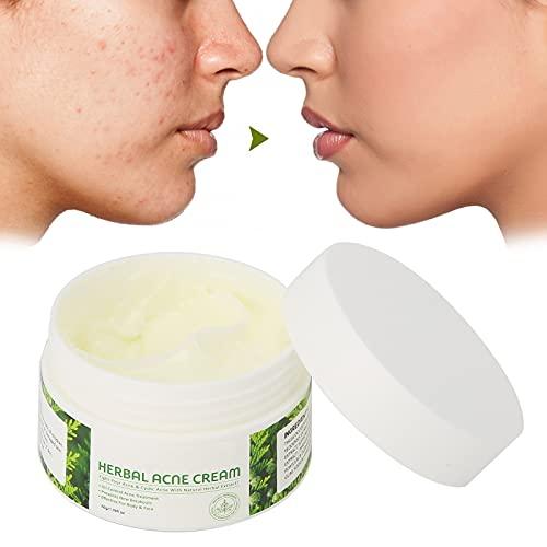 Whitening Cream, 50g Acne Verwijdering Crème Plantenextractie Anti-Acne Puistje Verwijdering Hydraterende Crème