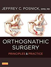 Best orthognathic surgery principles and practice Reviews