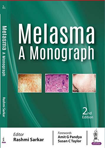 Melasma :A Monograph (English Edition)