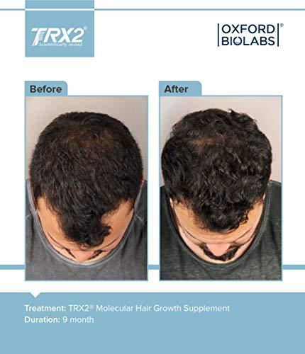 TRX2® Molecular Hair Growth Supplement 1 Month Supply Natural Biotin Selenium Zink Hair Loss Treatment