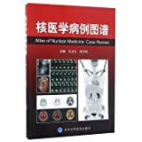 Nuclear Medicine Case Atlas(Chinese Edition)