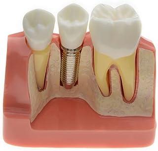 AZDENT® Dental Model Implant Analysis Crown Bridge Demonstration Teeth Model for Education