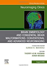 Brain Embryology and the Cause of Congenital Malformations, An Issue of Neuroimaging Clinics of North America (The Clinics: Radiology)