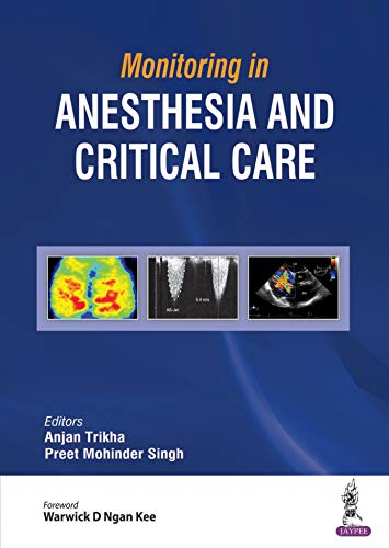 Monitoring in Anesthesia and Critical Care - Original PDF