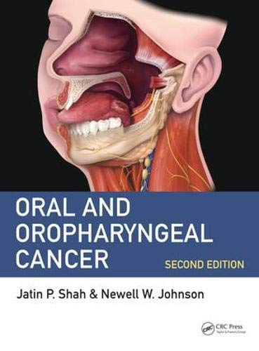 Download Oral and Oropharyngeal Cancer 149870008X