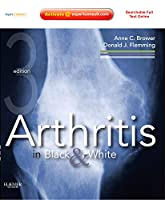 Arthritis in Black and White: Expert Consult - Online and Print, 3e